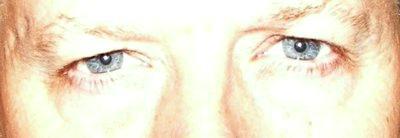 Eyes - Awareness